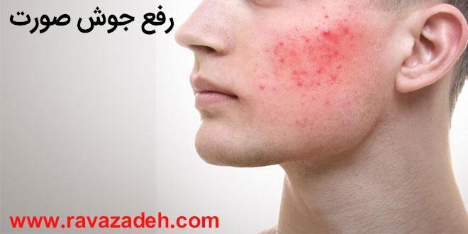 توصیه بهداشتی: رفع جوش صورت