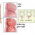 کولیت روده یا روده های تحریک پذیر