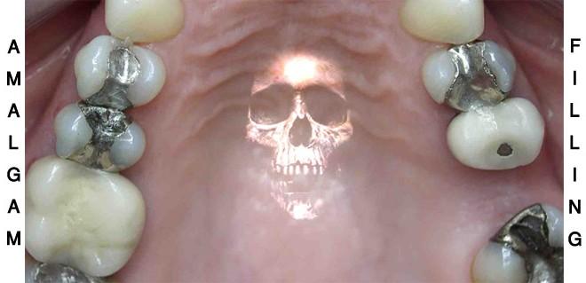 نقش آمالگام دندانی در سمیت جیوه در زنان
