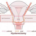 هیسترکتومی