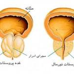 ورم پروستات