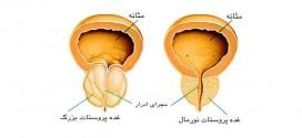 توصیه بهداشتی: تدابیر مربوط به ورم پروستات