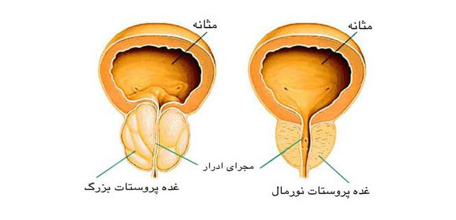 خطر رژیم حاوی گوشت های فرآوری شده برای بیماران مبتلا به سرطان پروستات