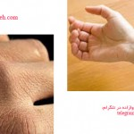 رفع خشکی و خارش پوست