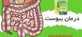 توصیه بهداشتی: درمان یبوست