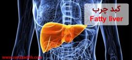 کبد چرب یا Fatty liver