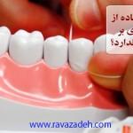 آیا می دانید استفاده از نخ دندان تاثیری بر سلامت دندانها ندارد؟