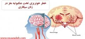 خطر خونریزی تحت عنکبوتیه مغز در زنان سیگاری