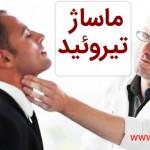 masje-tiroid
