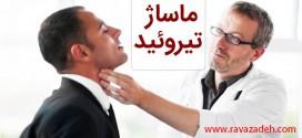 توصیه بهداشتی: احیای ماساژ تیروئید
