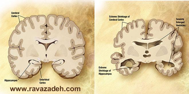 ارتباط بین مصرف آنتی هیستامین و ابتلا به آلزایمر