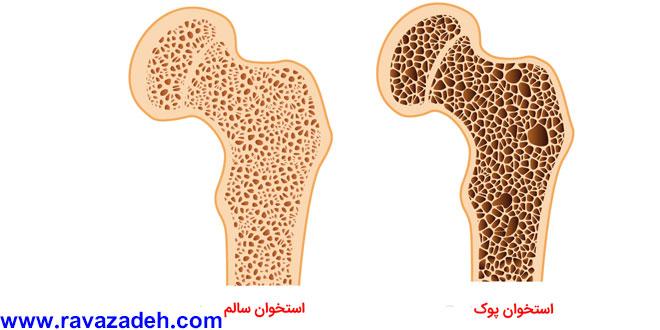 مهم ترین عامل ابتلا به پوکی استخوان