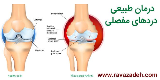 درمان کاملاً طبیعی و معجزه آسای دردهای مفصلی
