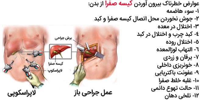 عوارض خطرناک بیرون آوردن کیسه صفرا از بدن