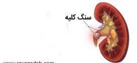 توصیه های بهداشتی: درمان سنگ کلیه