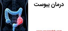 درمان یبوست ناشی از غلبه بلغم + کلیپ تصویری