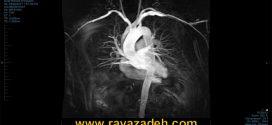 تصویربرداری زنده تحت MRI از ضربان قلب