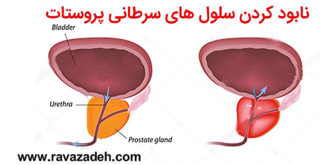 نابود کردن سلول های سرطانی پروستات