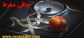 تدابیر چاقی مفرط