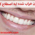 درمان دندان خراب شده (به اصطلاح کرم خورده)
