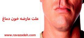 علت عارضه خون دماغ