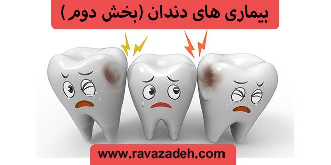بیماری های دندان (بخش دوم)