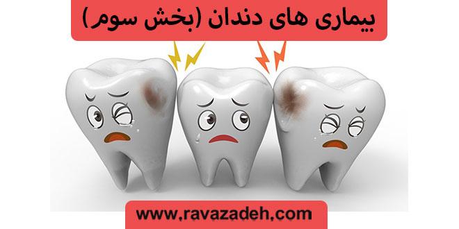 بیماری های دندان (بخش سوم)