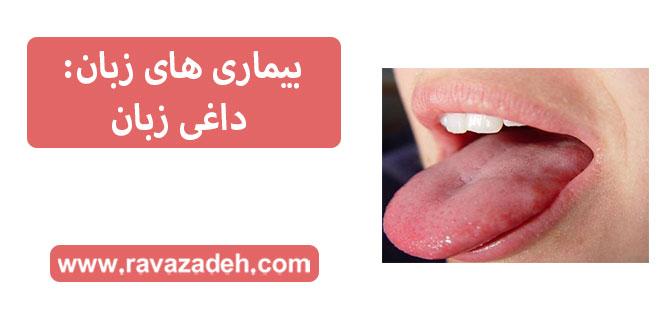 بیماری های زبان: داغی زبان