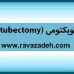 توبکتومی (tubectomy)