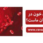 آیا سرطان خون در کمین کودکان ماست؟