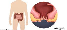 توصیه های بهداشتی: درمان شقاق مقعد