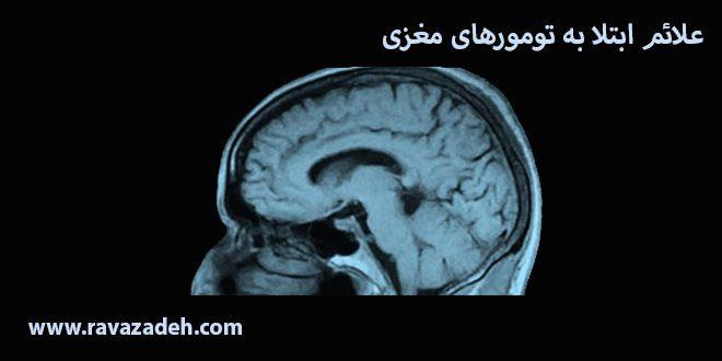 علائم ابتلا به تومورهای مغزی