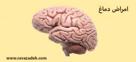 امراض دماغ