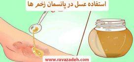 استفاده عسل در پانسمان زخم ها