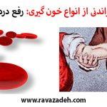 حکایت هایی خواندنی از انواع خون گیری: رفع درد چشم با فصد