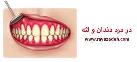 در درد دندان و لثه
