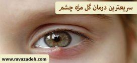 سریعترین درمان گل مژه چشم