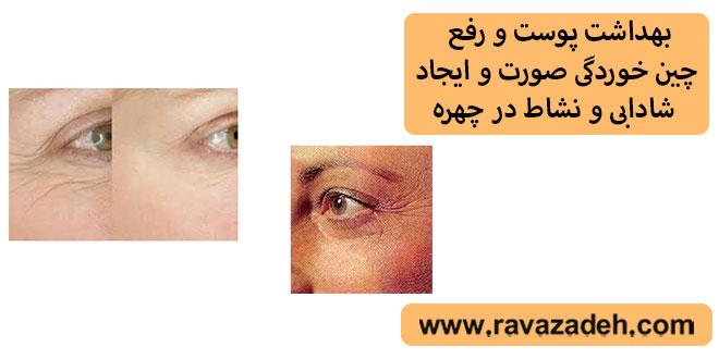 بهداشت پوست و رفع چین خوردگی صورت و ایجاد شادابی و نشاط در چهره