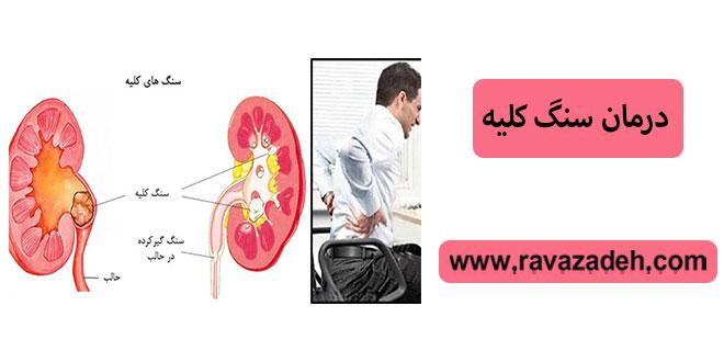 Photo of درمان سنگ کلیه
