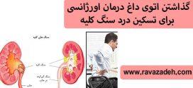 گذاشتن اتوی داغ درمان اورژانسی برای تسکین درد سنگ کلیه