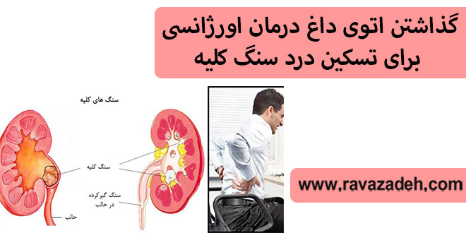 Photo of گذاشتن اتوی داغ درمان اورژانسی برای تسکین درد سنگ کلیه
