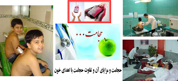 Photo of توصیه بهداشتی: حجامت و مزایای آن و تفاوت حجامت با اهدای خون تعریف حجامت