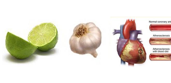 توصیه بهداشتی: نسخه رفع گرفتگی و انسداد عروق قلب