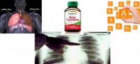 سرطان ریه و مکمل های غذایی