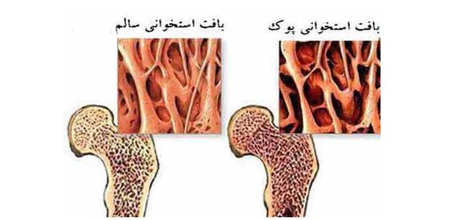 ارتباط درمان پوکی استخوان با خطر مرگ و میر