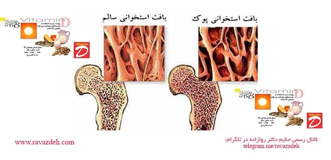 آیا می دانید که دوز بالای ویتامین D نمی تواند زنان را در برابر پوکی استخوان حفظ کند