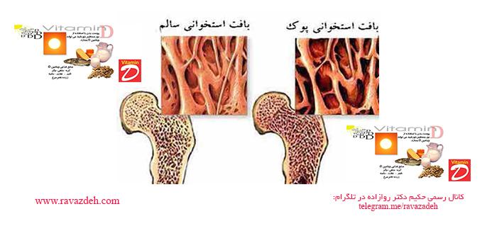 Photo of آیا می دانید که دوز بالای ویتامین D نمی تواند زنان را در برابر پوکی استخوان حفظ کند