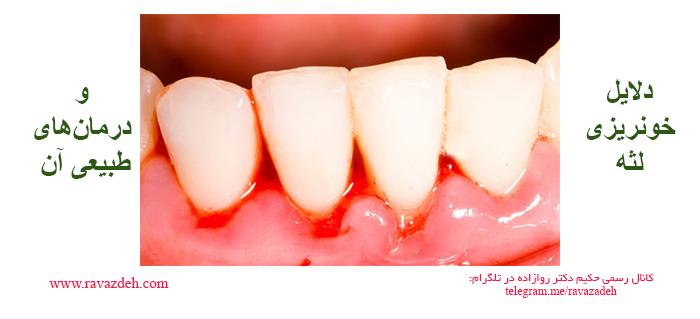 Photo of دلایل خونریزی لثه و درمانهای طبیعی آن