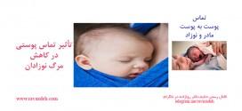 تأثیر تماس پوستی (پوست به پوست مادر و نوزاد) در کاهش مرگ نوزادان