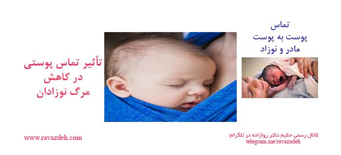 Photo of تأثیر تماس پوستی (پوست به پوست مادر و نوزاد) در کاهش مرگ نوزادان